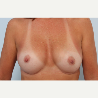 Breast Implant Exchange before 2966178