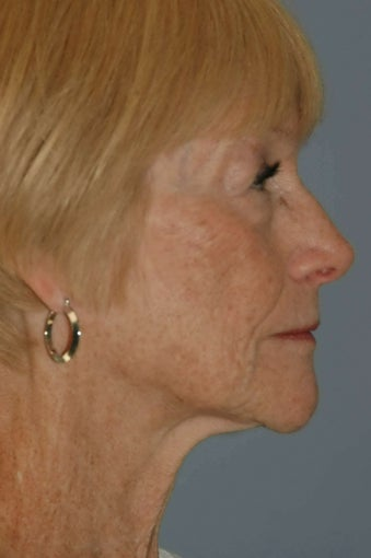 68 year old female fat grafting to the face 1236754