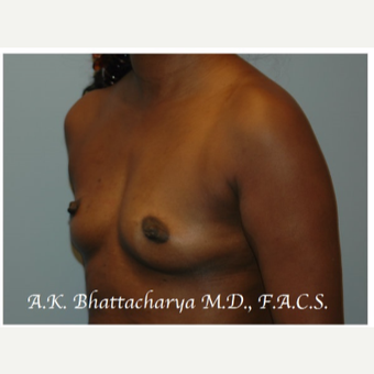 35-44 year old woman treated with Breast Augmentation before 3621993