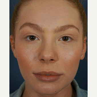 18-24 year old woman treated with Lip Augmentation after 3244977