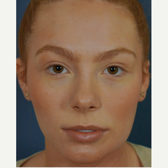 18-24 year old woman treated with Lip Augmentation before 3244977