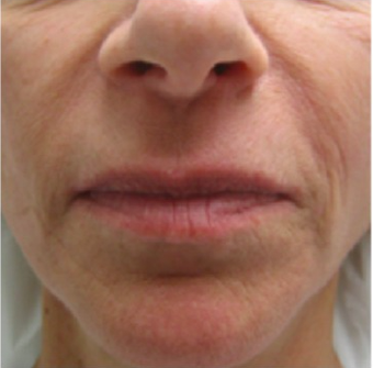 35-44 year old woman treated with Liquid Facelift before 2467612