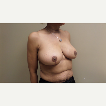45-54 year old woman treated with Breast Augmentation after 3548823