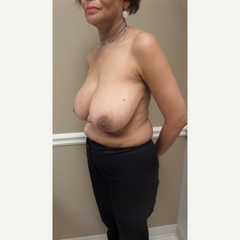 45-54 year old woman treated with Breast Augmentation before 3548823