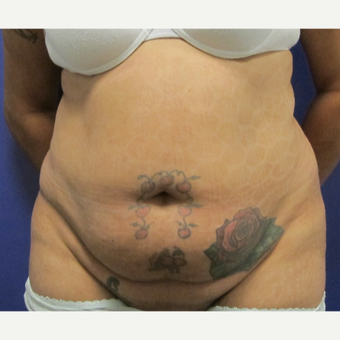 45-54 year old woman treated with Tummy Tuck before 3691007