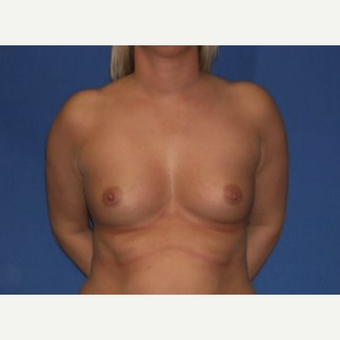 25-34 year old woman treated with Breast Augmentation before 3219911