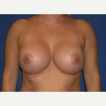 25-34 year old woman treated with Breast Augmentation after 3219911
