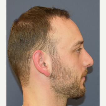 18-24 year old man treated with Rhinoplasty after 3067133