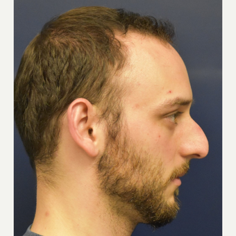 18-24 year old man treated with Rhinoplasty before 3067133