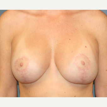 Breast Augmentation with Implants after 3412365