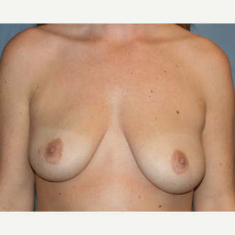 Breast Augmentation with Implants before 3412365