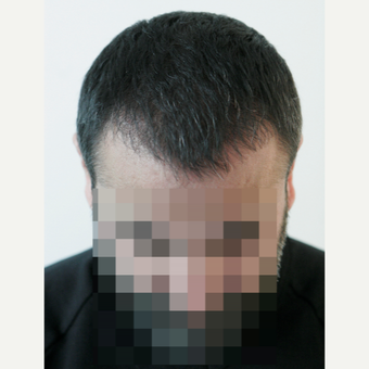 45-54 year old man treated with FUE Hair Transplant after 3210929