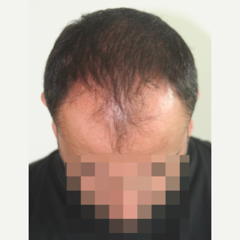 45-54 year old man treated with FUE Hair Transplant before 3210929
