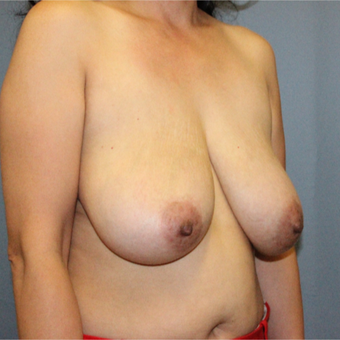 35 year old woman had a Breast Lift to improve severe breast sag before 3467185
