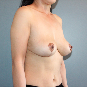 35 year old woman had a Breast Lift to improve severe breast sag after 3467185