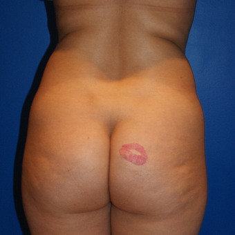 25-34 year old woman treated with Brazilian Butt Lift, Liposuction, and Fat Grafting before 3125850