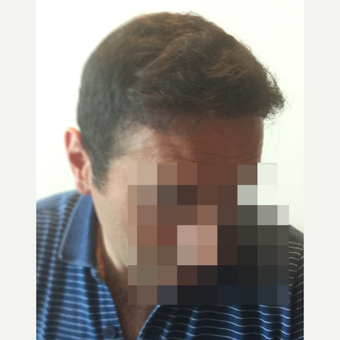 35-44 year old man treated with FUE Hair Transplant after 3145800