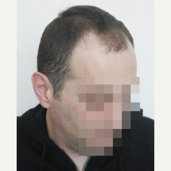 35-44 year old man treated with FUE Hair Transplant before 3145800