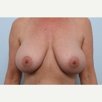 Breast Implant Exchange after 2966453