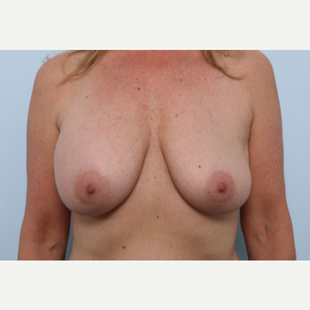Breast Implant Exchange before 2966453