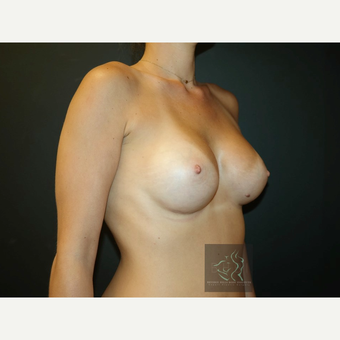 25-34 year old woman treated with Mentor Breast Implants after 3726041