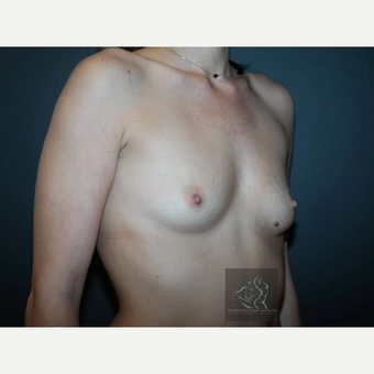 25-34 year old woman treated with Mentor Breast Implants before 3726041