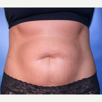 Tummy Tuck before 1608073