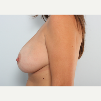 Breast Augmentation after 3460005