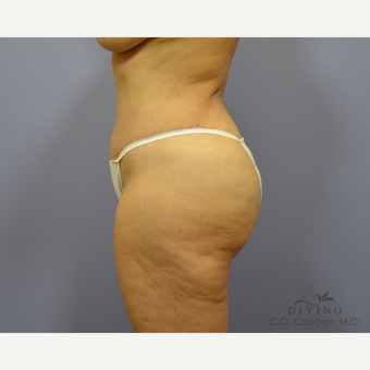 55-64 year old woman treated with Tummy Tuck after 3422083