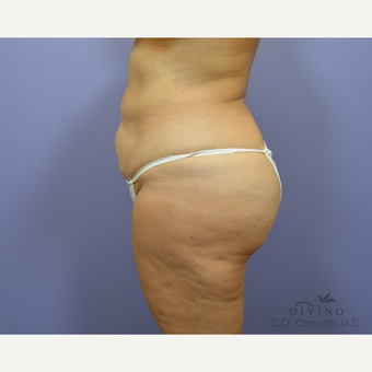 55-64 year old woman treated with Tummy Tuck before 3422083