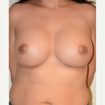 35-44 year old woman treated with Breast Augmentation after 3565947