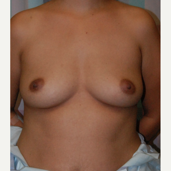 35-44 year old woman treated with Breast Augmentation before 3565947