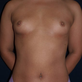 26 year old woman treated with Breast Fat Transfers  before 1607634