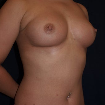 26 year old woman treated with Breast Fat Transfers  1607634