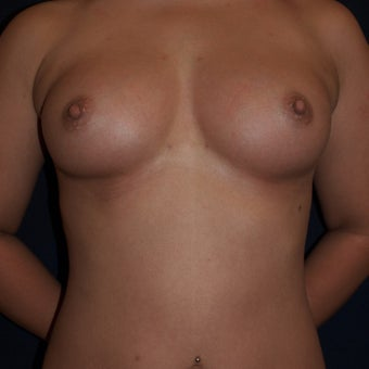 26 year old woman treated with Breast Fat Transfers  after 1607634