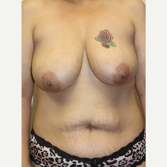 35-44 year old woman treated with Mommy Makeover before 3253212