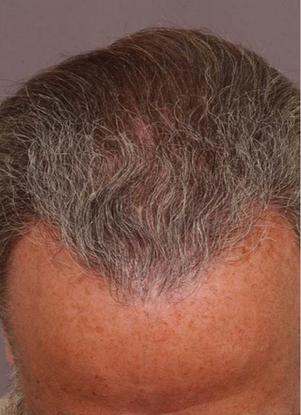 54 year old man treated with Hair Transplant after 1647714