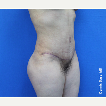 45-54 year old woman treated with Tummy Tuck after 3679878
