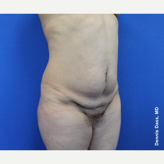 45-54 year old woman treated with Tummy Tuck before 3679878