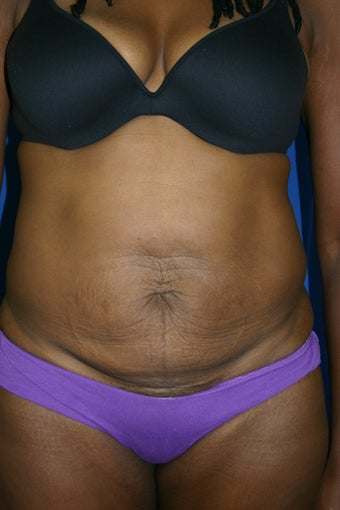 tummy tuck before 1279969