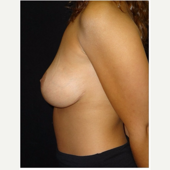 25-34 year old woman treated with Breast Lift after 3175346