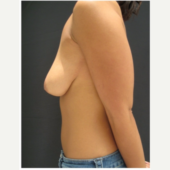 25-34 year old woman treated with Breast Lift before 3175346