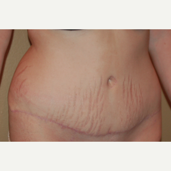 25-34 year old woman treated with Tummy Tuck after 3057134