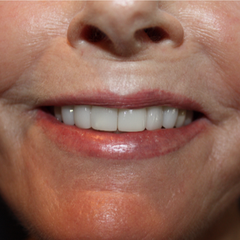 65-74 year old woman treated with Porcelain Veneers after 2852186