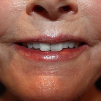 65-74 year old woman treated with Porcelain Veneers before 2852186