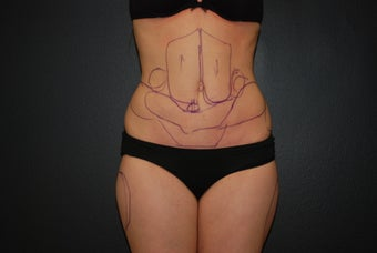 SMall volume liposculpting / liposuction before 982380