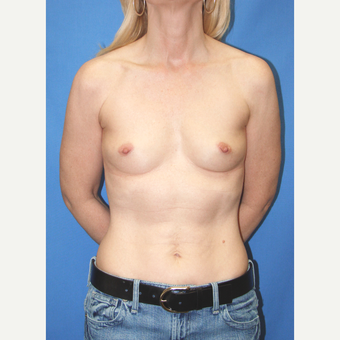 35-44 year old woman treated with Breast Augmentation before 3095105
