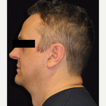 45-54 year old man treated with MACS Facelift after 3747975