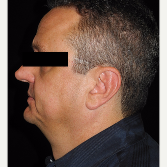 45-54 year old man treated with MACS Facelift before 3747975