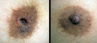 Inverted Nipple Correction before 1232997